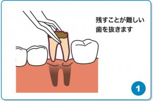 歯の移植①