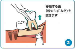 歯の移植②