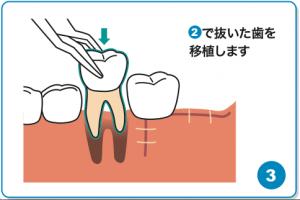 歯の移植③
