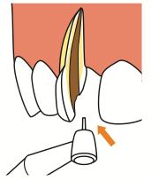 被せ物の土台の種類で歯の寿命が変わる?