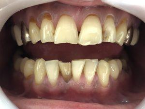 歯の漂白🦷